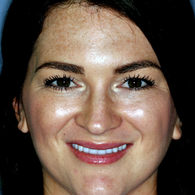 Headshot of woman smiling after getting veneers