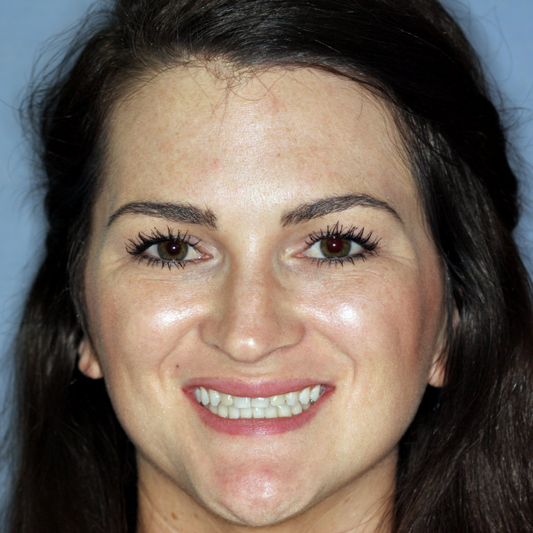 Headshot of woman smiling before teeth whitening and veneers