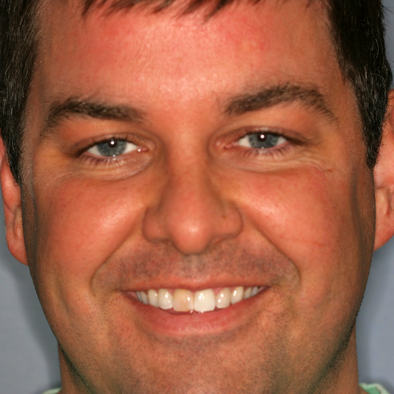 Headshot of man smiling with discolored front tooth