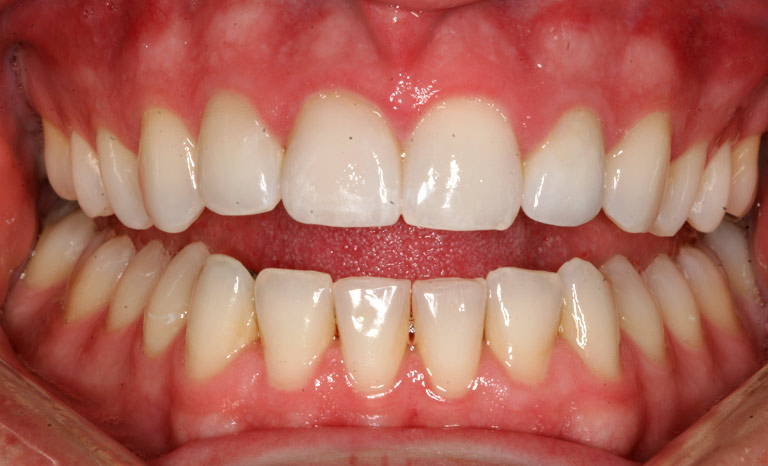 Closeup of man's teeth with even white smile after fixing of discolored tooth
