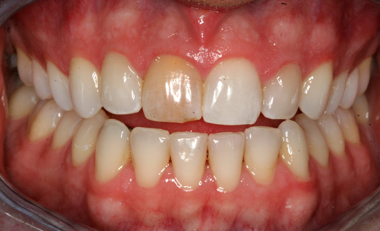 Closeup of man's teeth with discolored front tooth