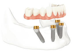 Diagram of a lower jaw with All-On-4 dental implants in the front of the jawbone. The back two implants are tilted.