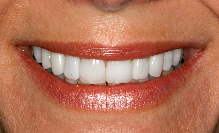 Closeup of woman's teeth after cosmetic dentistry with gaps removed and teeth whitened