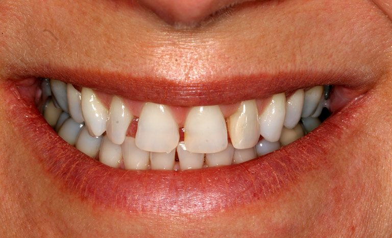 Closeup of woman's teeth showing gaps and discoloration