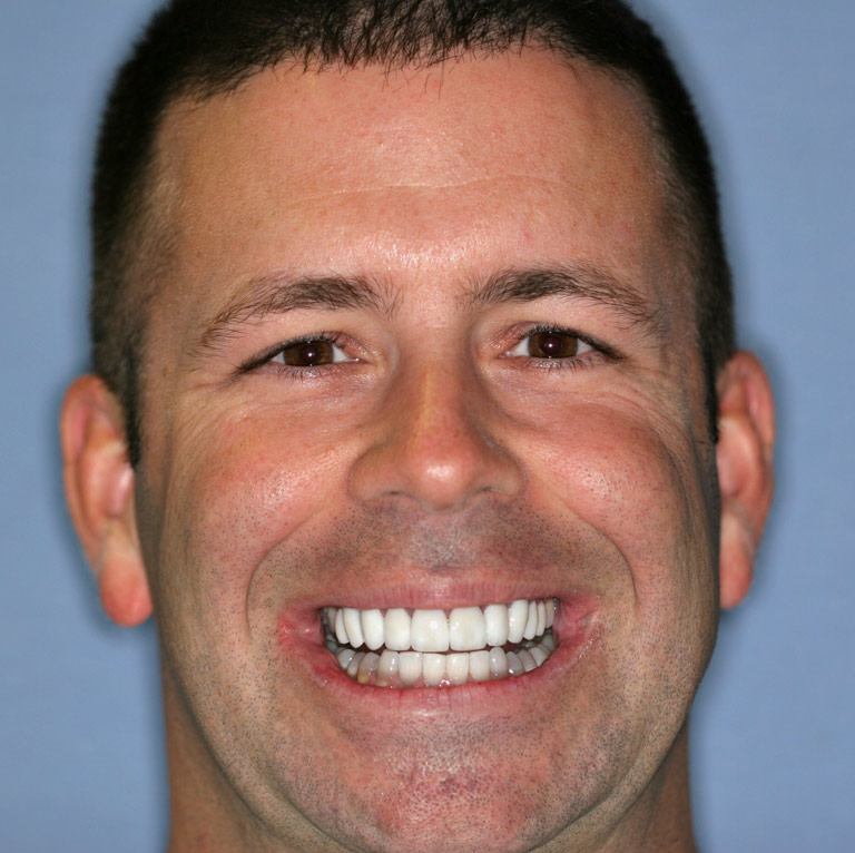 Headshot of dark haired man smiling with white even teeth after cosmetic dentistry