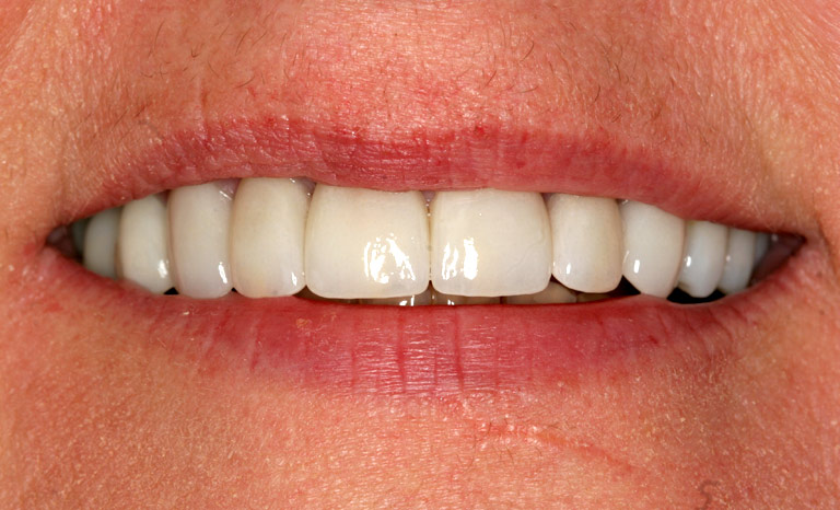 Closeup of woman smiling with even white teeth after cosmetic dentistry