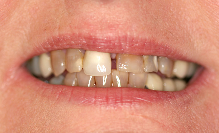 Closeup of woman's severely discolored and uneven teeth.