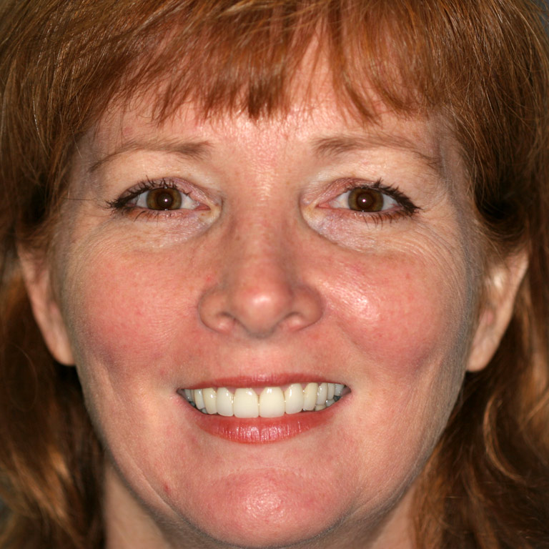 Headshot of red-haired woman smiling with white teeth