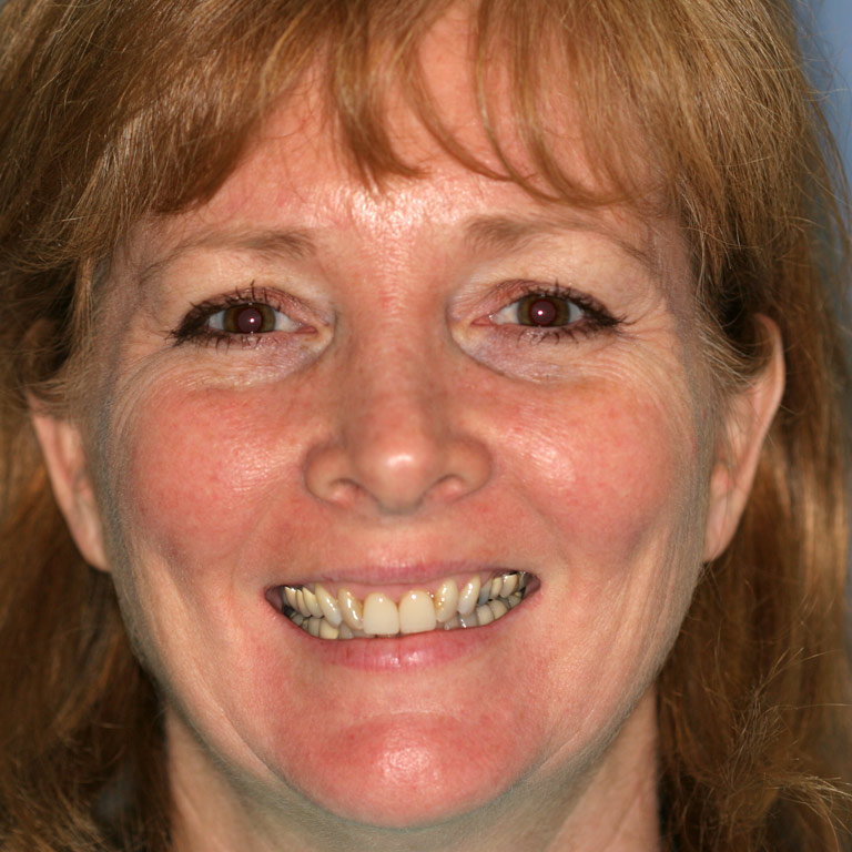 Headshot of red-haired woman smiling with discolored uneven teeth