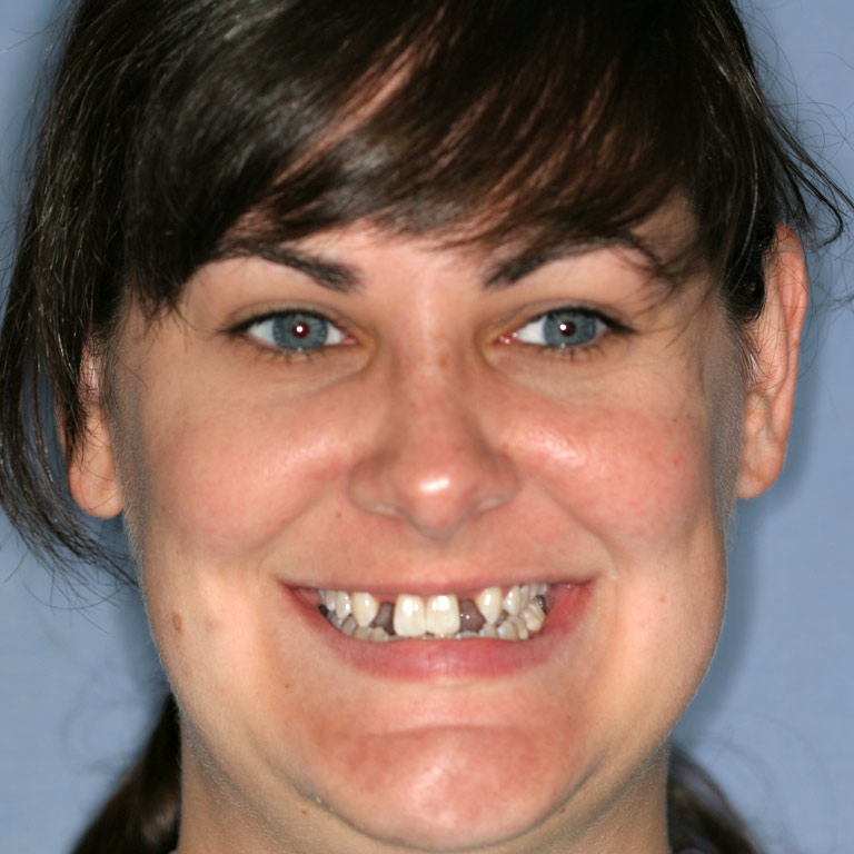 Headshot of woman smiling with missing incisors and discoloration