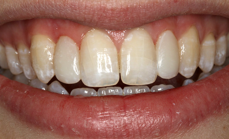 Closeup of woman smiling after application of veneers showing white even smile