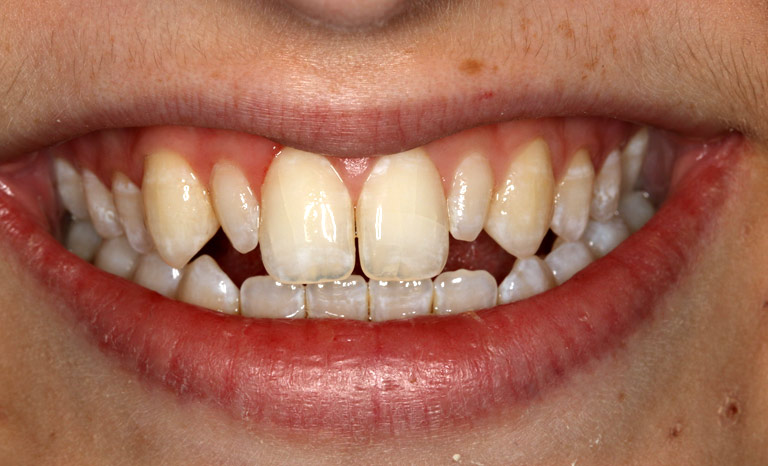 Closeup of woman smiling with uneven discolored teeth