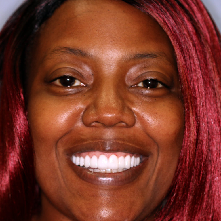 Headshot of black woman smiling with full even teeth after cosmetic dentistry