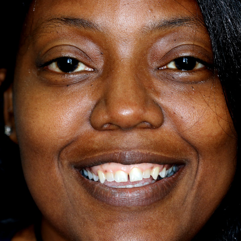 Headshot of black woman smiling with uneven short teeth