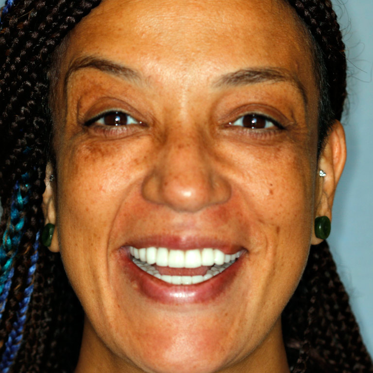 Headshot of african-american woman smiling showing white even teeth after veneers