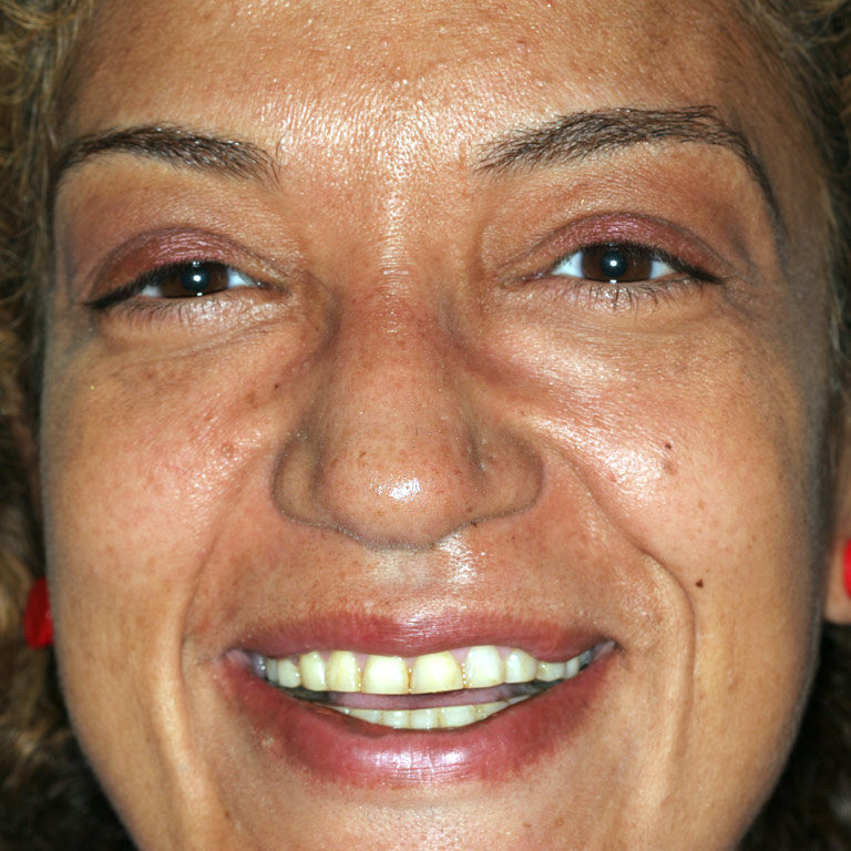 Headshot of african-american woman smiling showing worn down discolored teeth