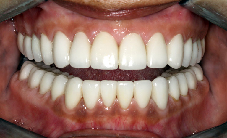 Closeup of woman's mouth showing white even teeth after veneers