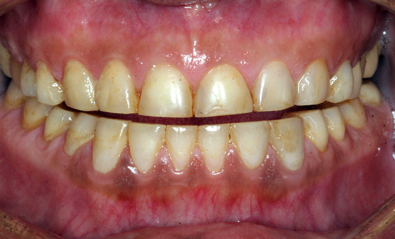 Closeup of woman's mouth showing discolored worn down teeth