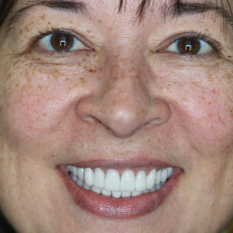 Headshot of dark haired woman smiling showing even white teeth after cosmetic dentistry