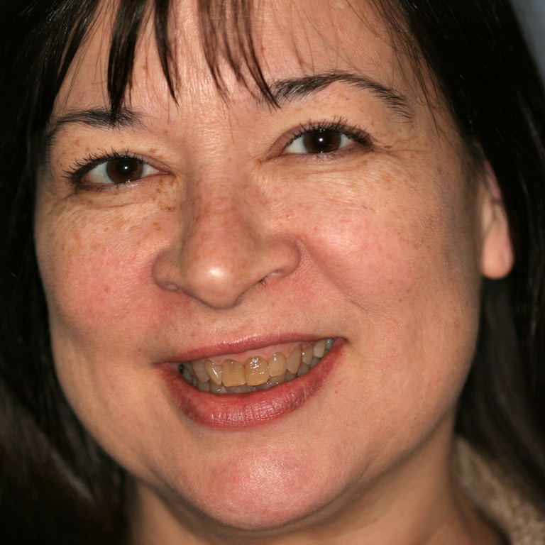 Headshot of dark haired woman smiling with severely discolored uneven teeth