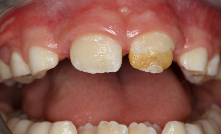 Closeup of child's mouth showing discolored front tooth