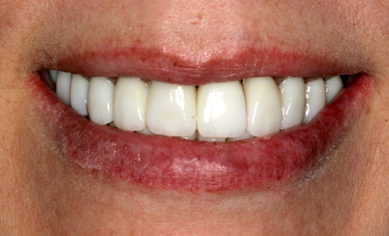 Closeup of woman''s mouth showing white even teeth after veneers