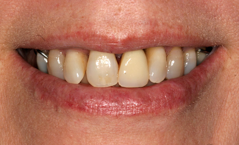 Closeup of woman's mouth showing discolored teeth
