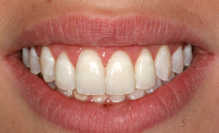 Closeup of woman's mouth showing large white teeth
