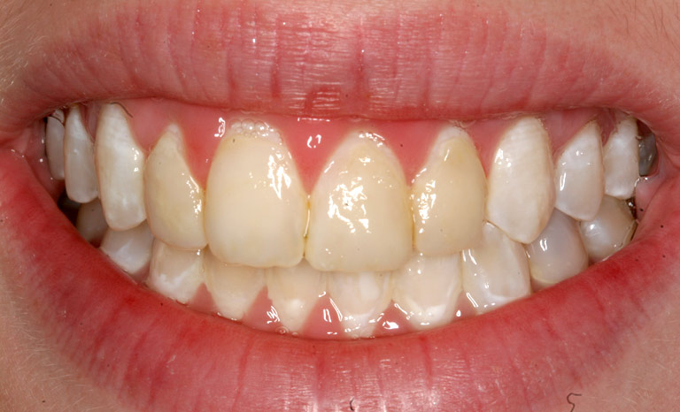 Closeup of woman's mouth showing severely yellowed teeth