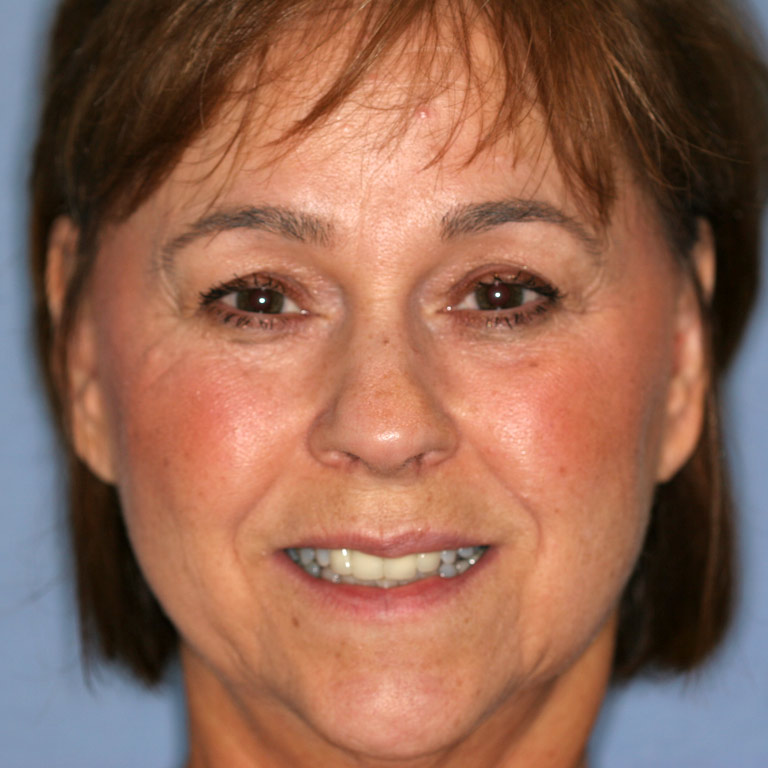 Headshot of dark haired woman showing worn discolored teeth