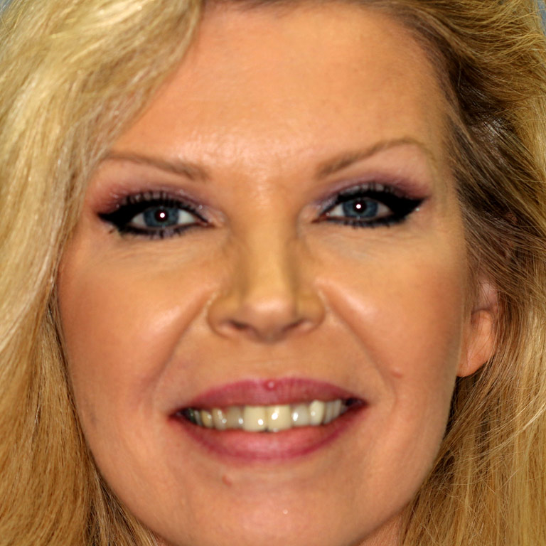 Headshot of blond haired woman showing discolored teeth