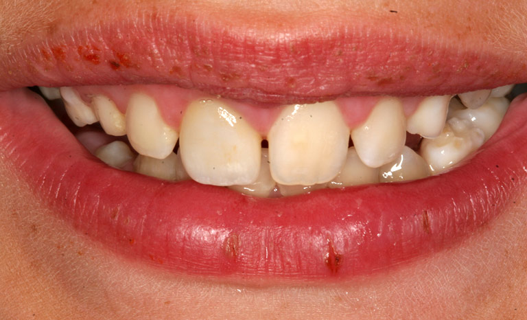 Closeup of child's mouth showing repaired front tooth