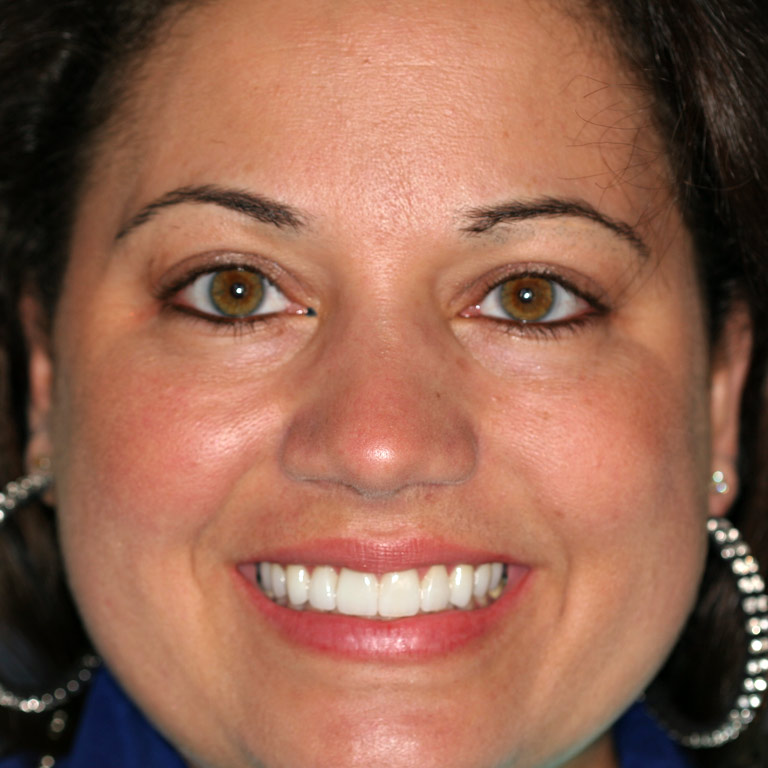 Headshot of woman smiling showing white even teeth after cosmetic dentistry