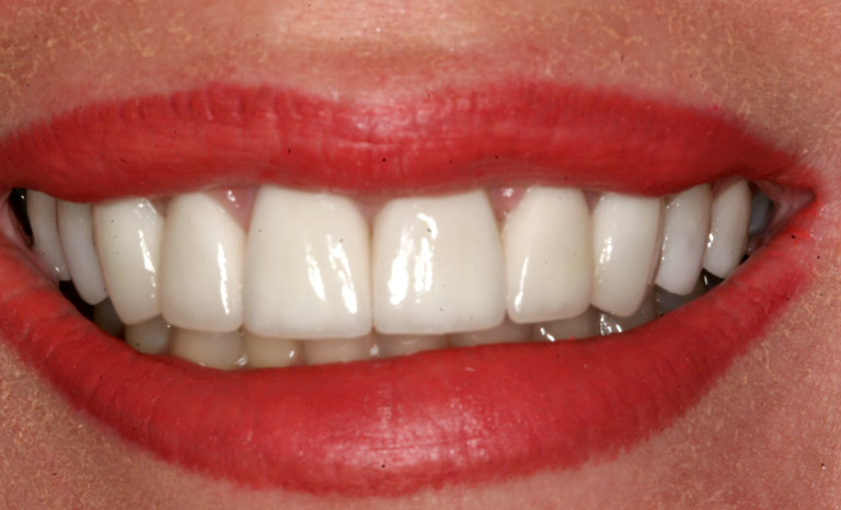 Closeup of woman's mouth showing whitened teeth