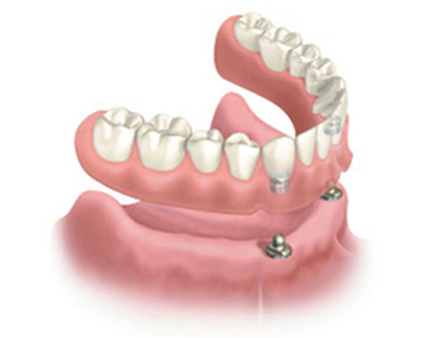Diagram of an affordable dental implant option - a snap-on denture hovering above two dental implants.