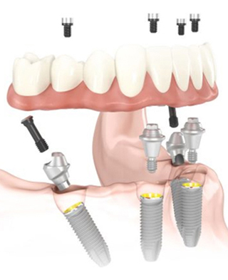 Diagram of a lower jaw with All-on-4 dental implants placed, and an arch of teeth is hovering above the jaw.