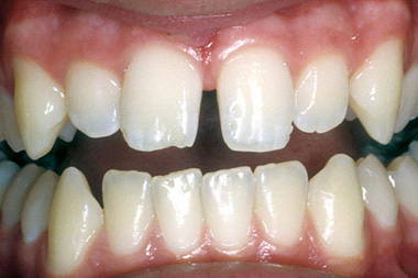 Before dental bonding photo of a gap between the patient's front teeth.