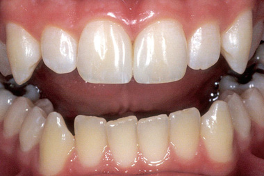 After dental bonding photo of central incisors that no longer have a gap betwen them.