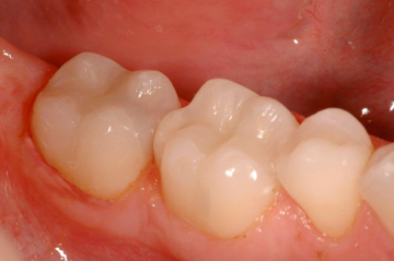 After photo of mercury-free-fillings on three lower molar teeth that replaced silver fillings.