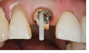 Photo of a fiberglass post in a upper front tooth; for information on Monroe, LA dental emergencies when crowns fall off.