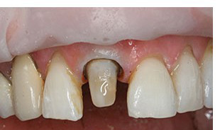 Photo of a tooth prepared for a crown after a post was inserted in the root canal; for information on dental emergencies in Monroe, LA.