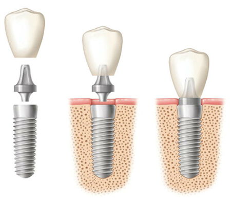 Diagram of of three side-by-side dental implants: 1 - implant components, 2 - implant root in the bone with abutment and crown above it, 3 - all components in place and in the jawbone.