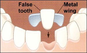 Diagram of a Maryland bridge suspended above the location of a lower missing tooth.