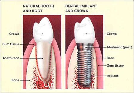 Diagram of a natural tooth (left) and dental implant (right) for information on how dental implant failure can be avoided.