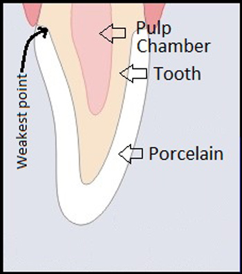Diagram of a cross section of a front tooth after root canal and porcelain crown