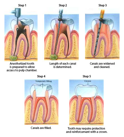Diagram with five steps during root canal treatment, including, numbing the tooth, determining canal length, widening and cleaning canals, filling canals, and restoring the tooth.