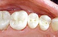 White fillings on lower molar teeth